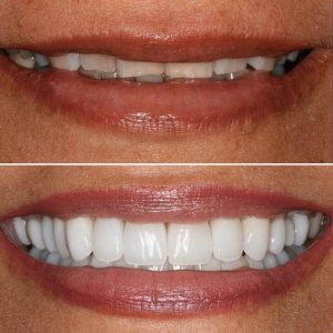 dentistry by Dr. Claire Cho - Aliso Viejo, CA