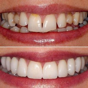dentistry by Dr Ken Harris and Dr Richard Coates - London, UK