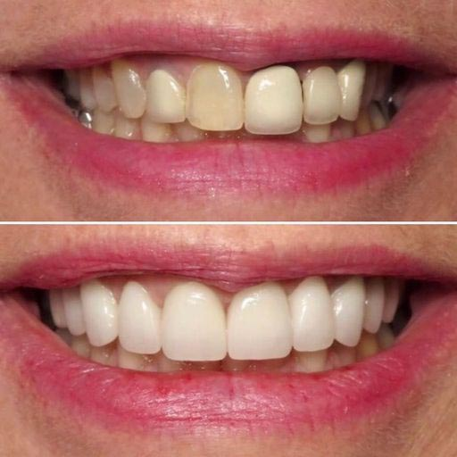 veneers by doctor michael cohen