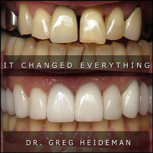veneers by doctor greg heideman