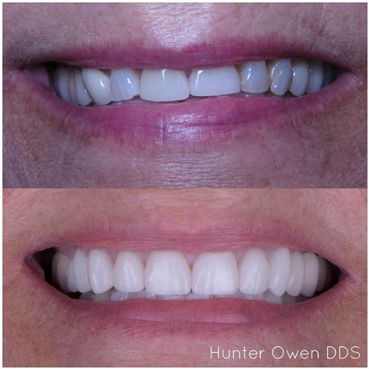 veneers by doctor hunter owen