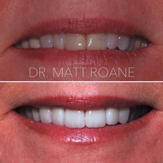 veneers by doctor matt roane