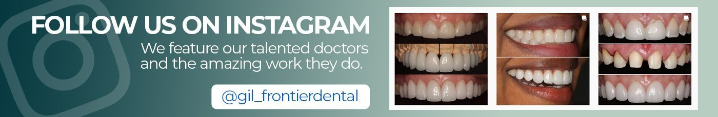 banner advertising frontier dental's instagram page