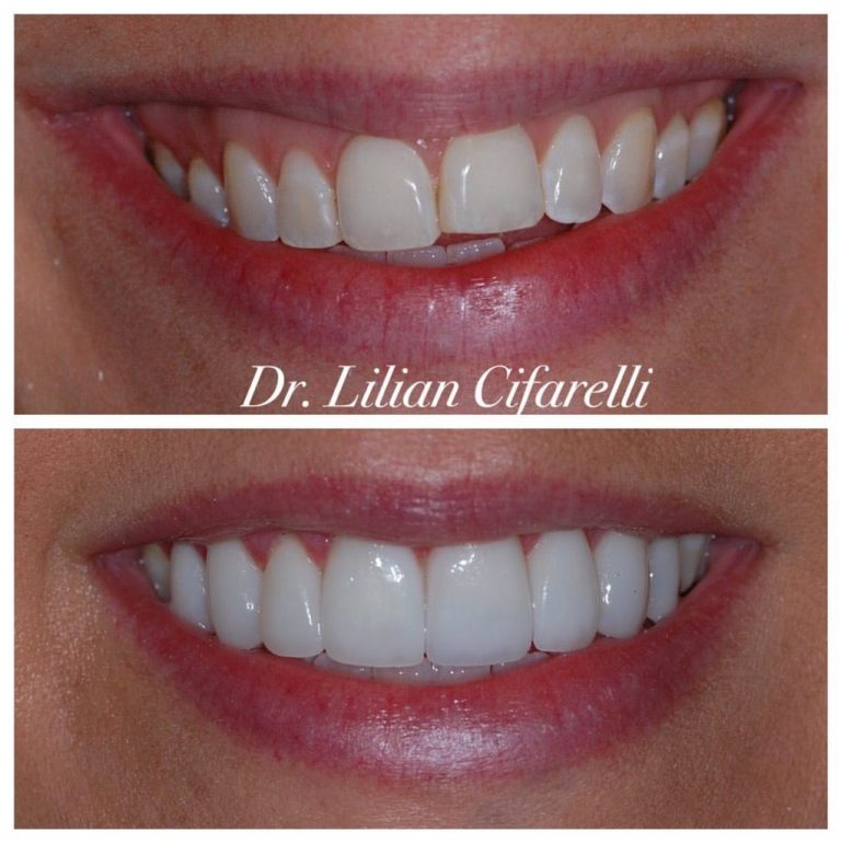 Dr. Lilly Cifarelli veneers before and after