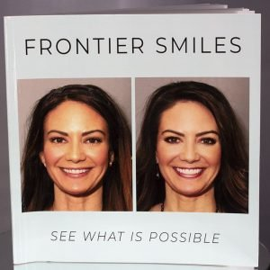 frontier smiles book cover