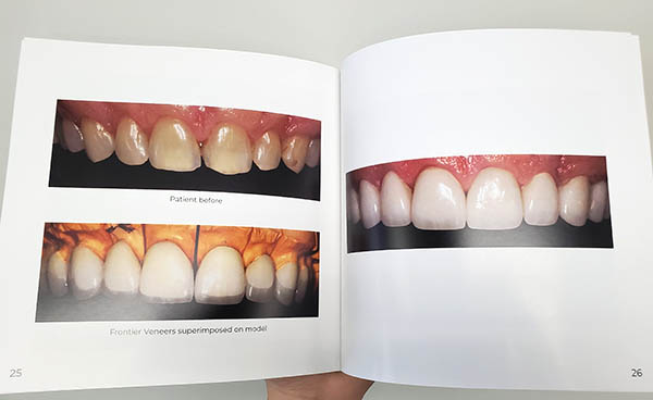 frontier dental lab veneers in the frontier smiles book used to increase case acceptance rate