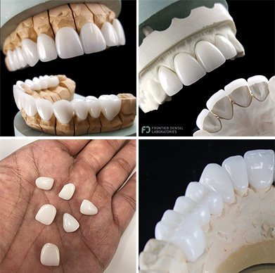 a collage of frontier dental veneers