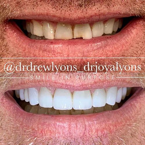 cosmetic dentistry by drew and joya lyons