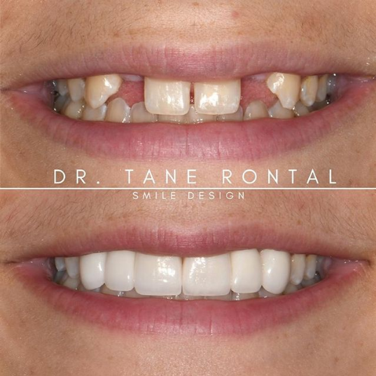 photo of before and after featuring doctor tane rontal