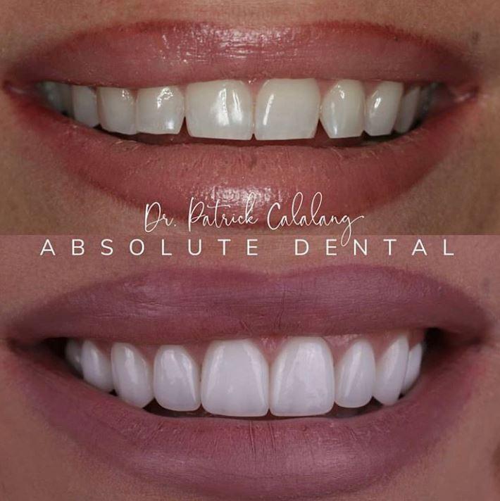 dentistry by doctor Patrick Calalang