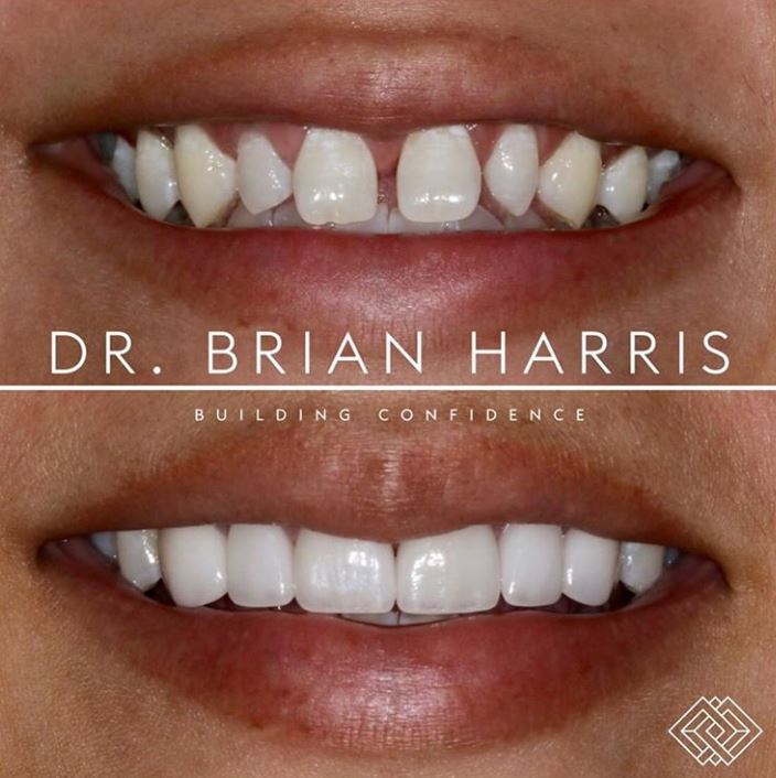 Dentistry by doctor brian harris