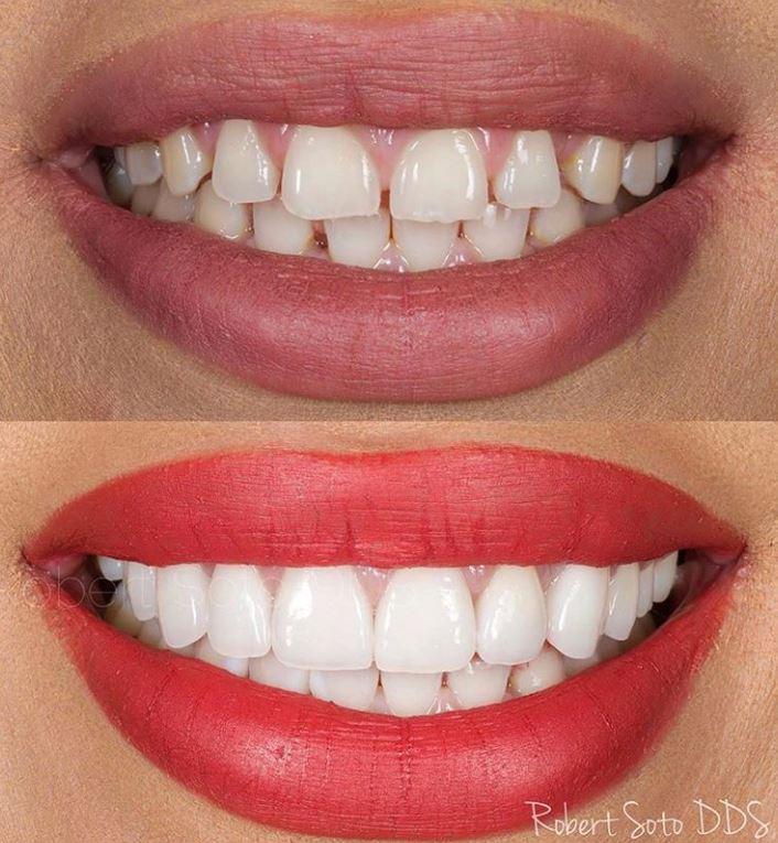 dentistry by Dr. Robert Soto - San Francisco, CA