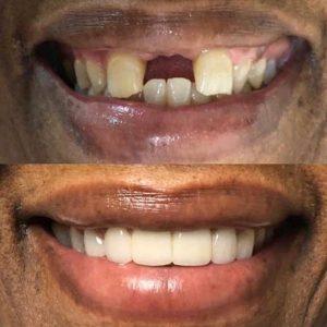 Dentistry by Dr Amira Ogunleye - Miami, FL
