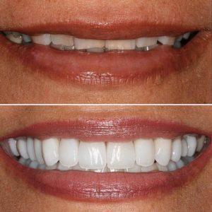 dentistry by Dr. Claire Cho - Aliso Viejo, CA