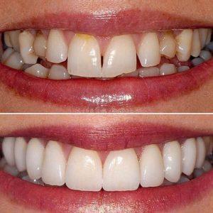 dentistry by Dr Ken Harris and Dr Richard Coates - London, UK