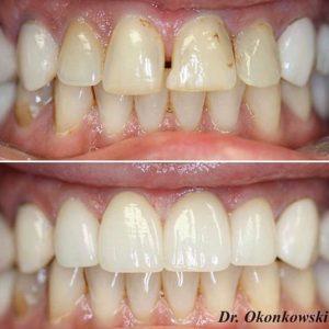 Dentistry by Dr Okonkowski, Detroit, MI