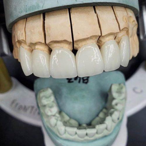 teeth-4