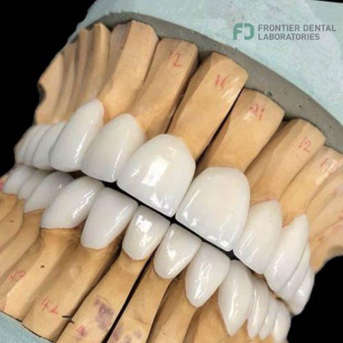 teeth-5