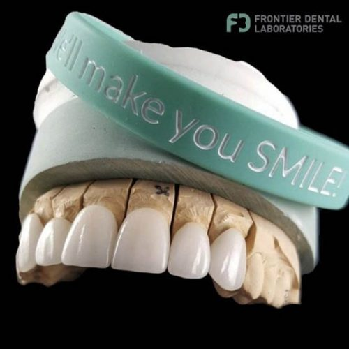 8 hand crafted veeneers made by frontier dental laboratories